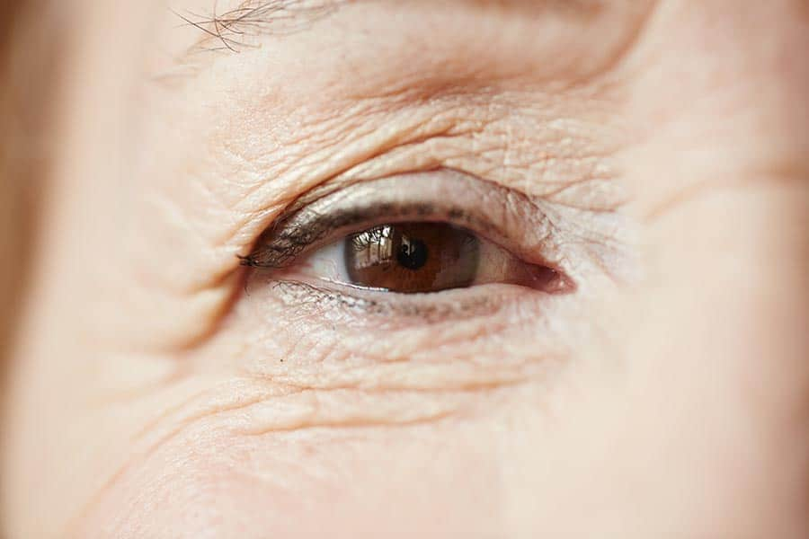 What is Ptosis Surgery?